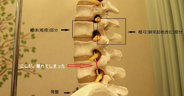 腰椎分離症の写真