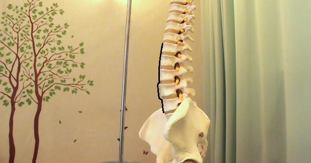 腰椎すべり症の写真