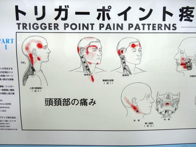 頭頚部のトリガーポイント疼痛パターン